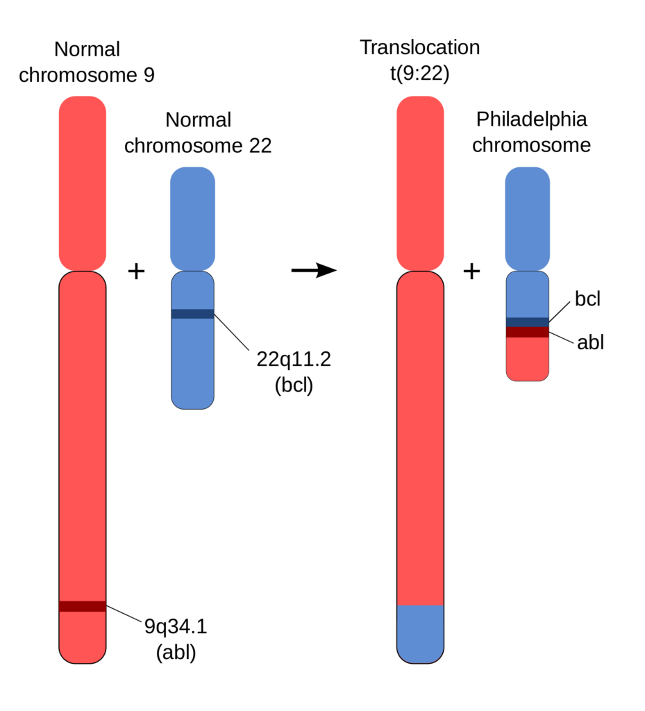 The Philadelphia chromosome contains the BCR-ABL gene fusion